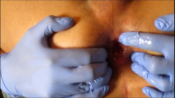 Prolapse, Extreme anal, Wide open, Gaping
